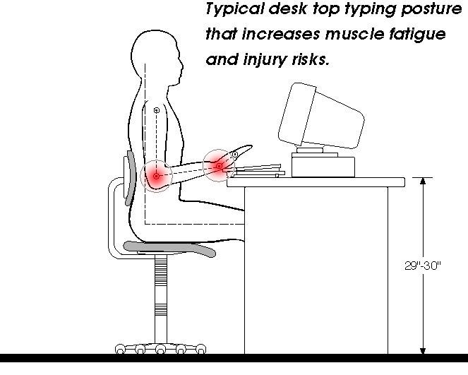 Deviated desk typing posture